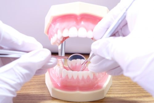 痛くなくても歯周病治療は必要?